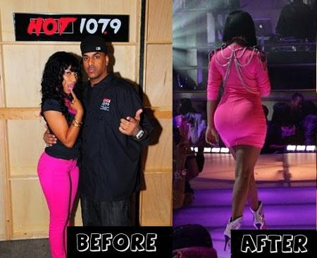 Nicki Minaj Before And After Plastic SurgeryNicki Minaj But Before