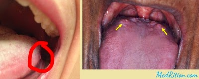 bumps on back of tongue and throat