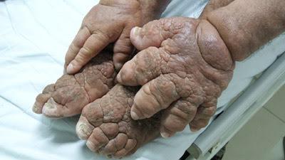man with hands and feet like orange peel