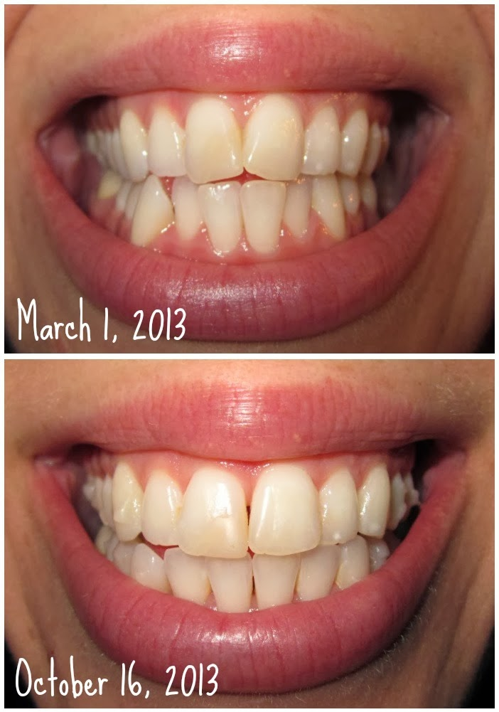Invisalign before and after buck teeth