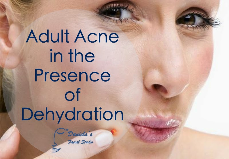 dehydrated acne prone skin