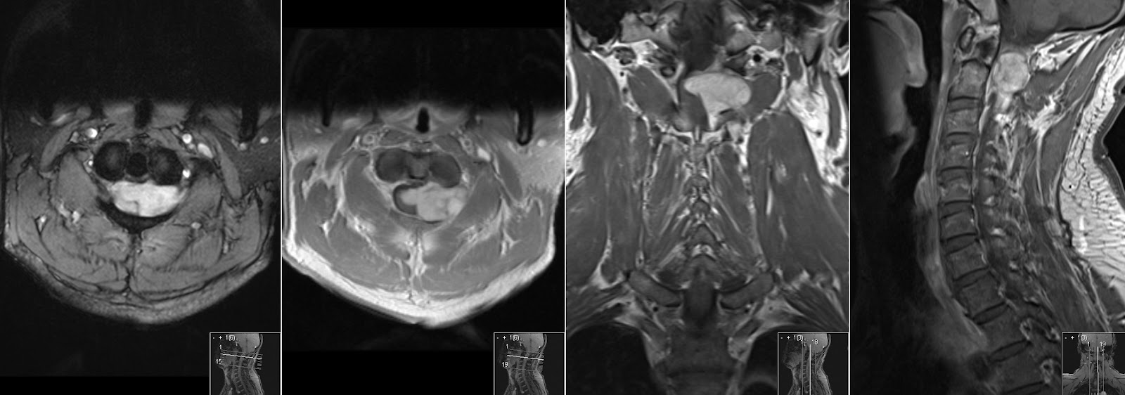 Radiology MRI: Spinal Neurinoma
