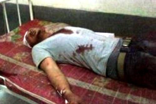 Korban Pembegalan. Kotabumi Lampung Utara
