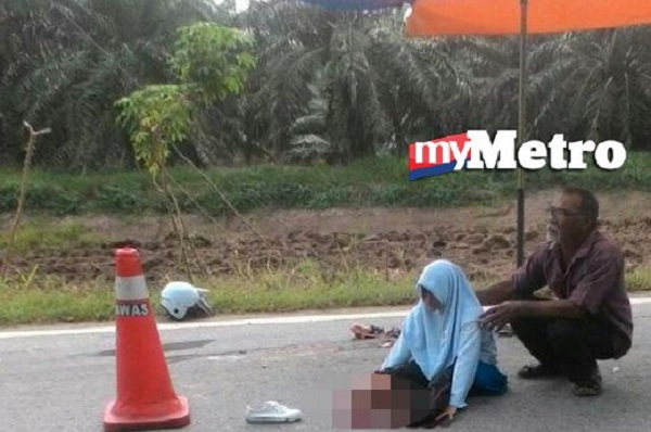 Pelajar perempuan terjatuh motor putus kedus-dua kaki akibat digilis lori