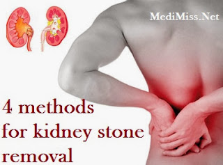 4 Methods For Kidney Stone Removal