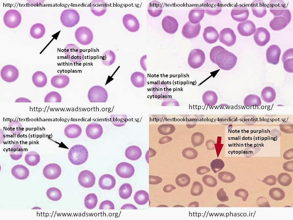 Haematology in a NutShell: Basophilic Stippling