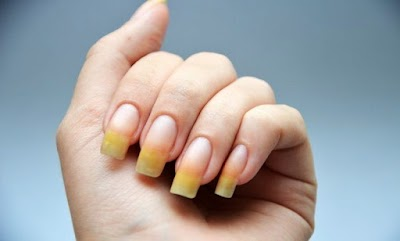 How to take care of yellow nails