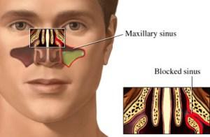 Solusi Mengobati Sinusitis Yang Sudah Terbukti Ampuh