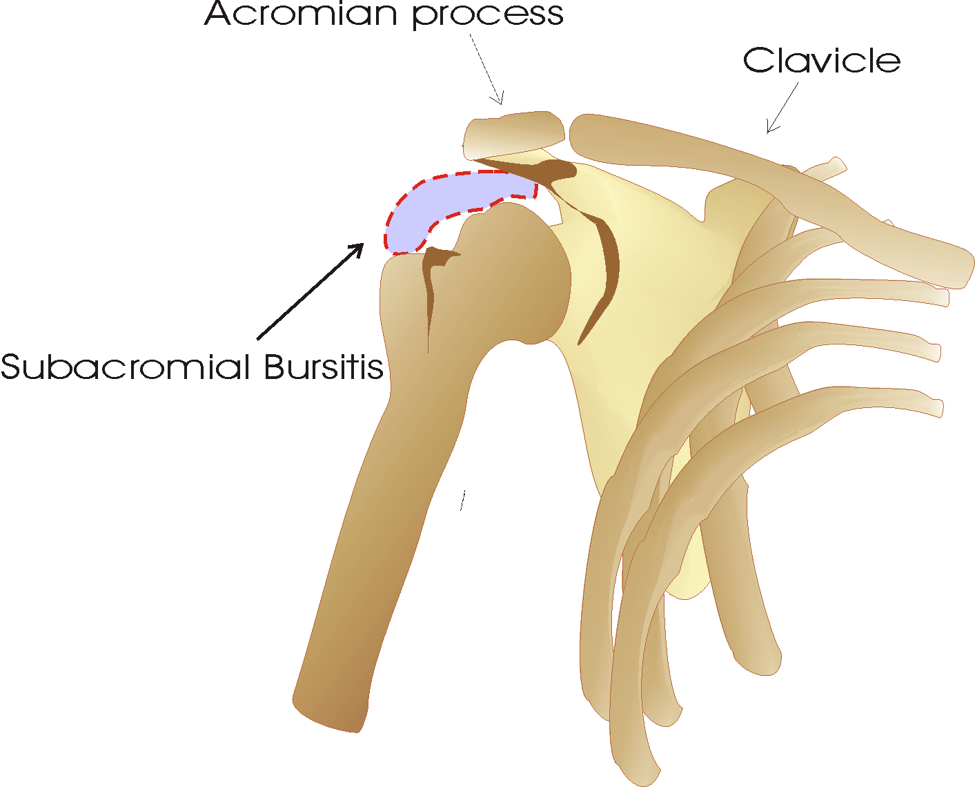 the clinical description of the inflammation of the bursa bursitis Trochanteric bursitis is a common diagnosis for patients presenting with lateral hip pain in theory, this makes complete sense when considering the anatomy and proximity of the trochanteric.