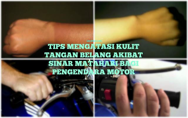 Anda Pengendara Motor? BEGINI Caranya Mengatasi tangan yang belang akibat sinar matahari!!