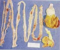 Hình 2: Xuất huyết ruột và ngả ba van hồi manh tràng