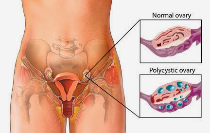 image of normal ovary and polycystic ovary