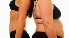 Obesitas , Gejala Obesitas, Penyebab, Faktor Resiko dan Mencegahnya