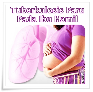 Pengobatan Herbal Tuberkulosis Paru Pada Ibu Hamil