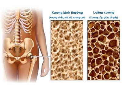 Những đối tượng dễ mắc bệnh loãng xương