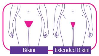 Example of bikini line — img 6