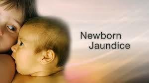 Bayi kelihatan kekuningan jika ada jaundice demam kuning selepas lahir