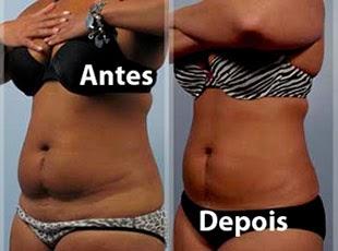 Fotos antes e depois de criolipólise na barriga