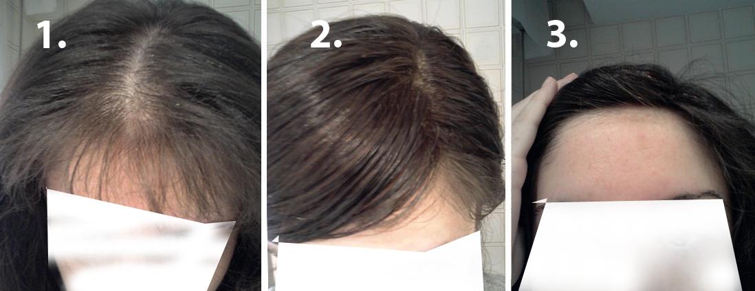Peinados Para Disimular Calvicie - Peinados para hombres con poco pelo Disimular las entradas
