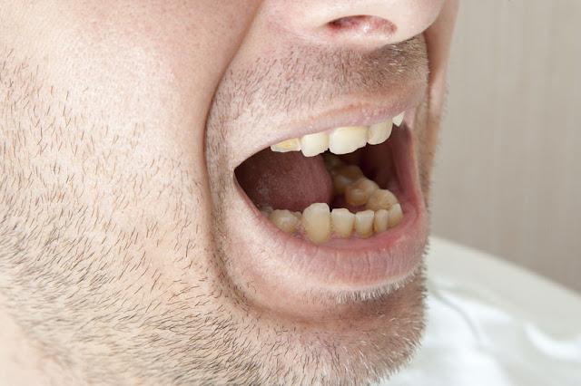kamień na zębny