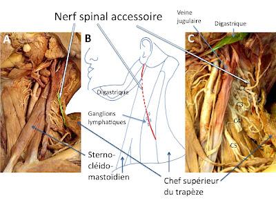 Le neurinome de lacoustique schwannome vestibulaire