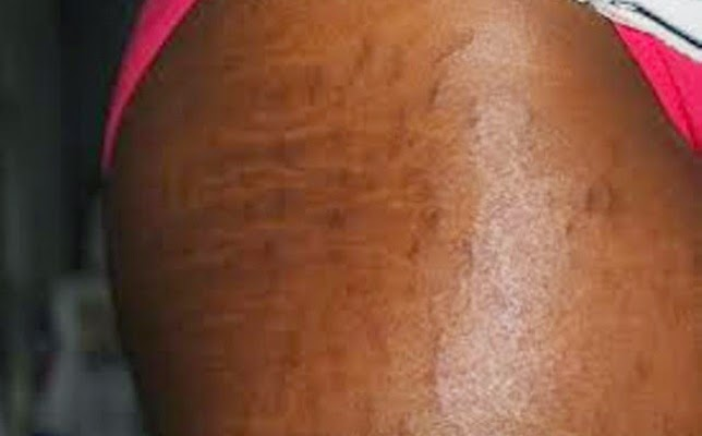 8 Ways To Get Rid Of Stubborn Stretch Marks