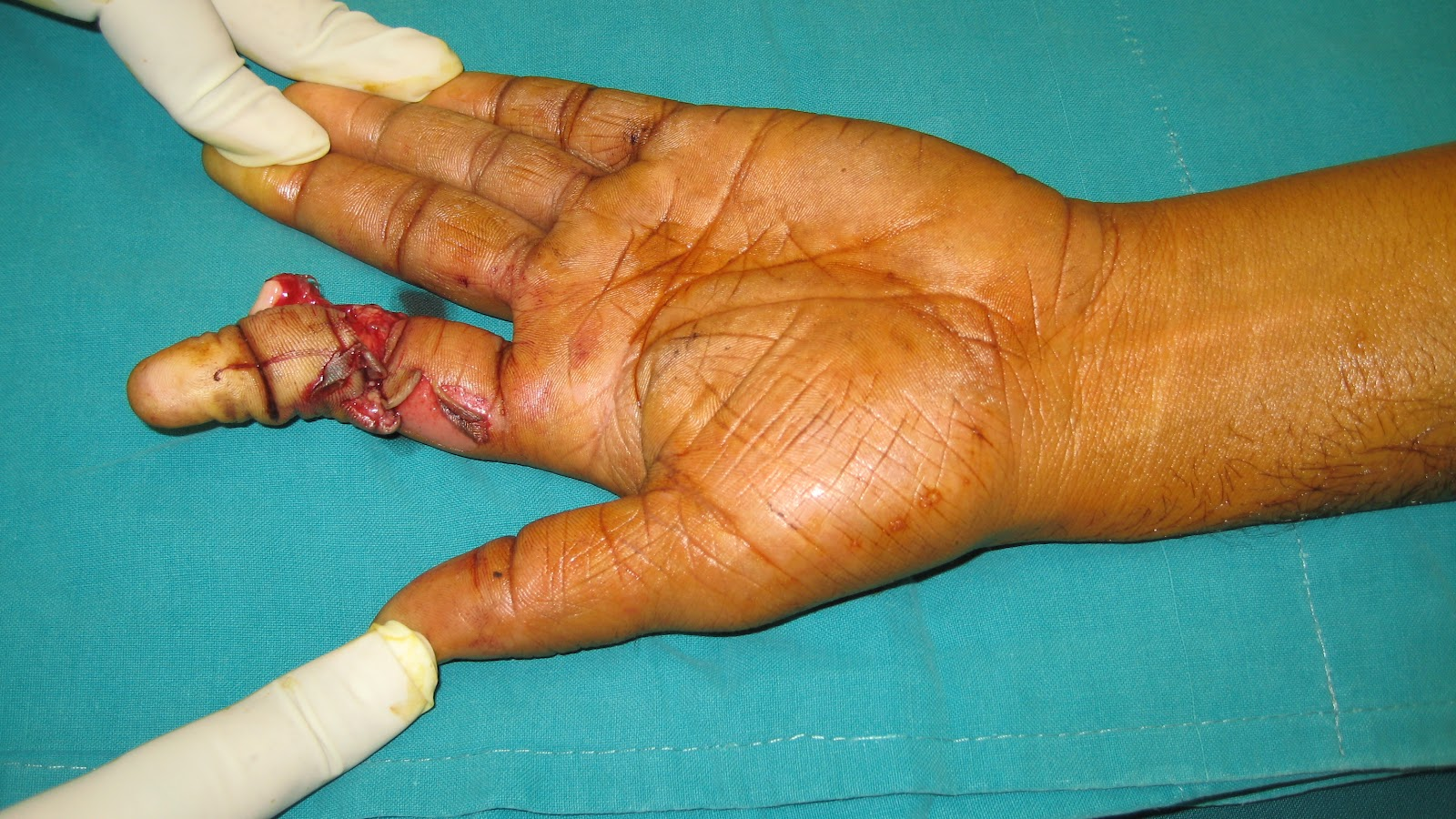 ring avulsion injury index finger hand groin flap coverage hand