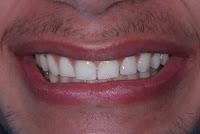 Discrepância de tamanos de dentes em relação a maxila