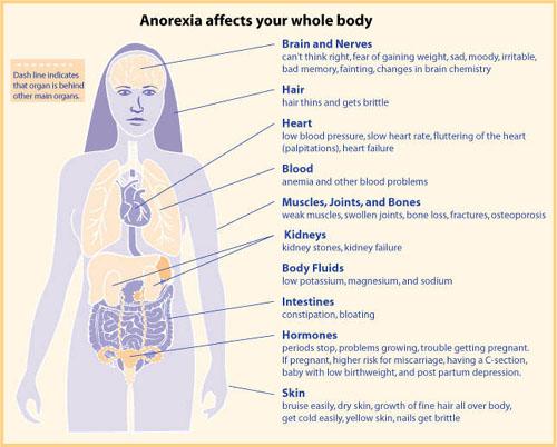 ما هو القهم العصابي (Anorexia nervosa)