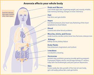Treat Of Anorexia Nervosa
