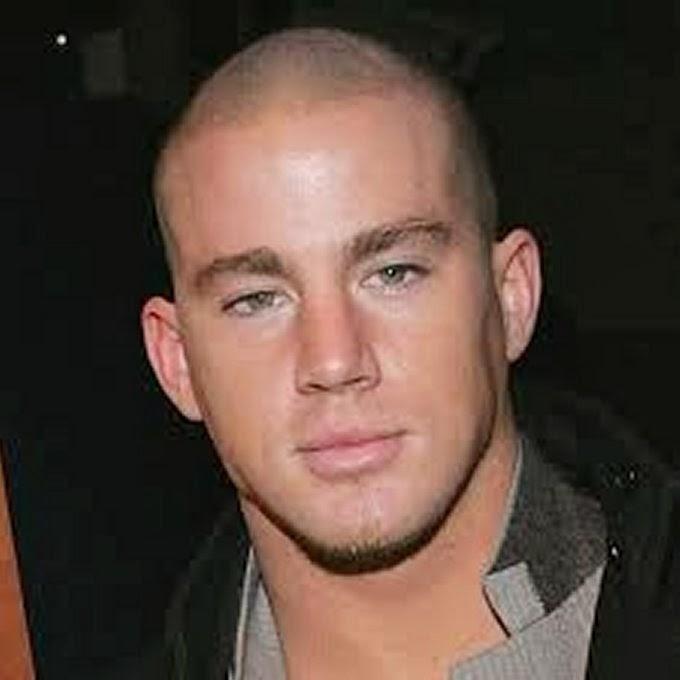 Balding Haircuts
