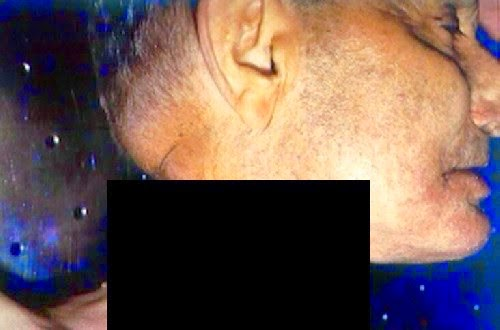 3 Gambar Ngeri Mayat Robin Williams Tersebar Luas Di Internet
