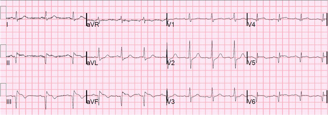Dr. Smith's ECG Blog: Chest pain and hypotension in a patient who is 3 ...