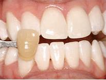 quickest way to whiten teeth zoom whitening