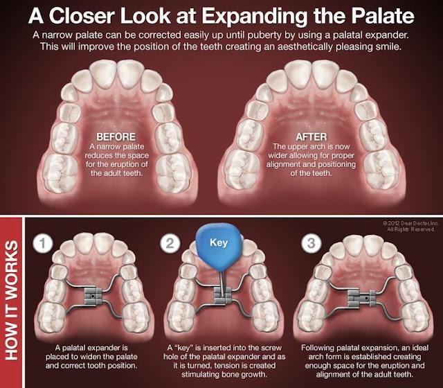 expansor palatino, hyrax dental, hyrax, disjuntor palatino