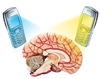 Brain Damage Cell Phone4