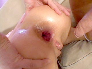 A2M anal
