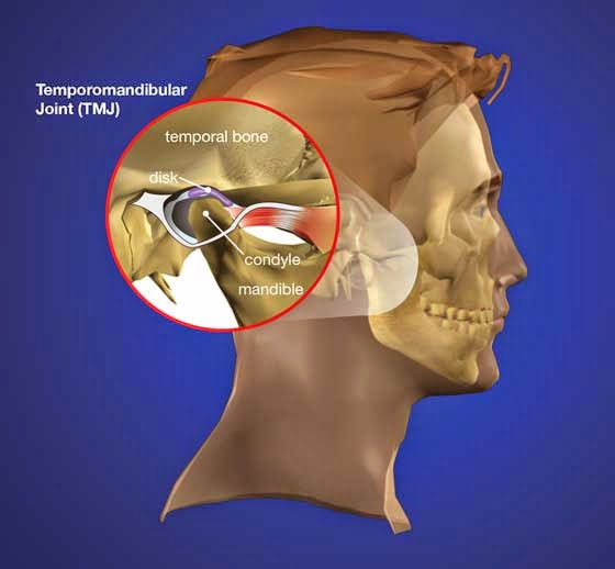 Temporomandibular Joint Dysfunction