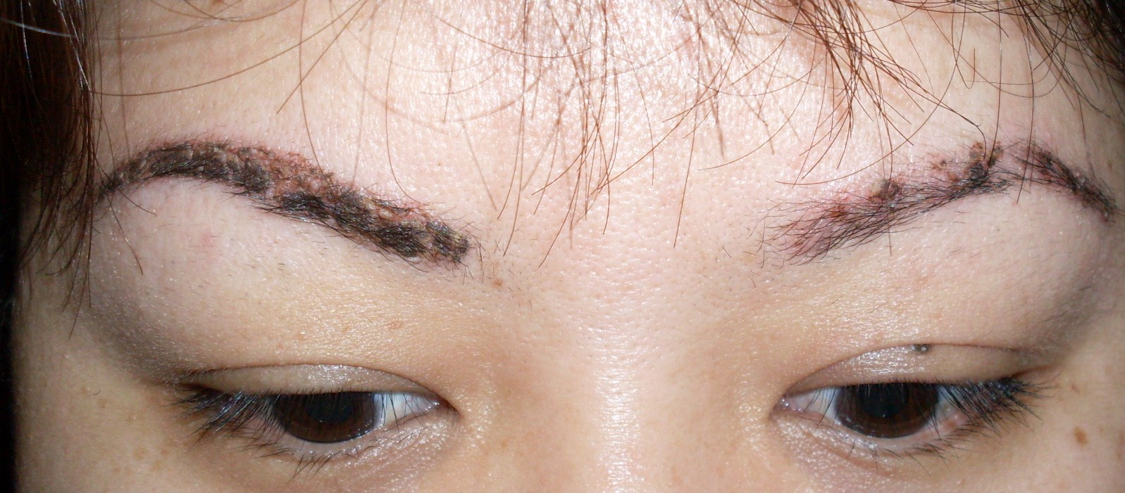 Eyebrow tattoo before after rachael edwards for Tattooed eyebrows gone wrong