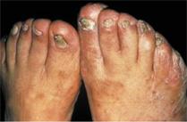 Que será si no curar el hongo sobre los dedos de los pies