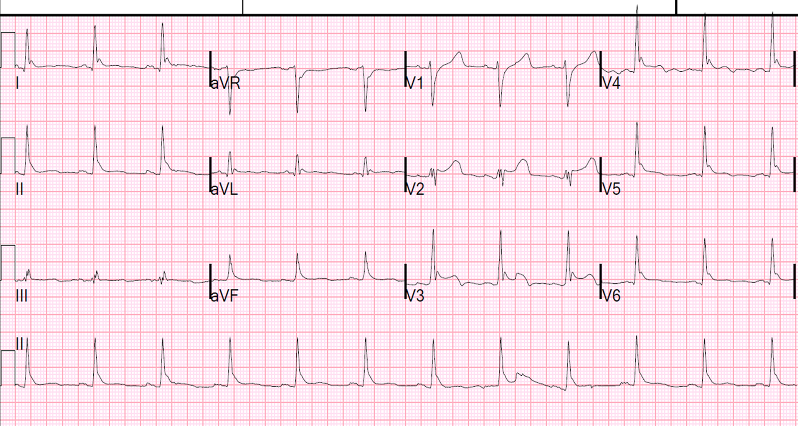 Dr. Smith's ECG Blog: Read this ECG