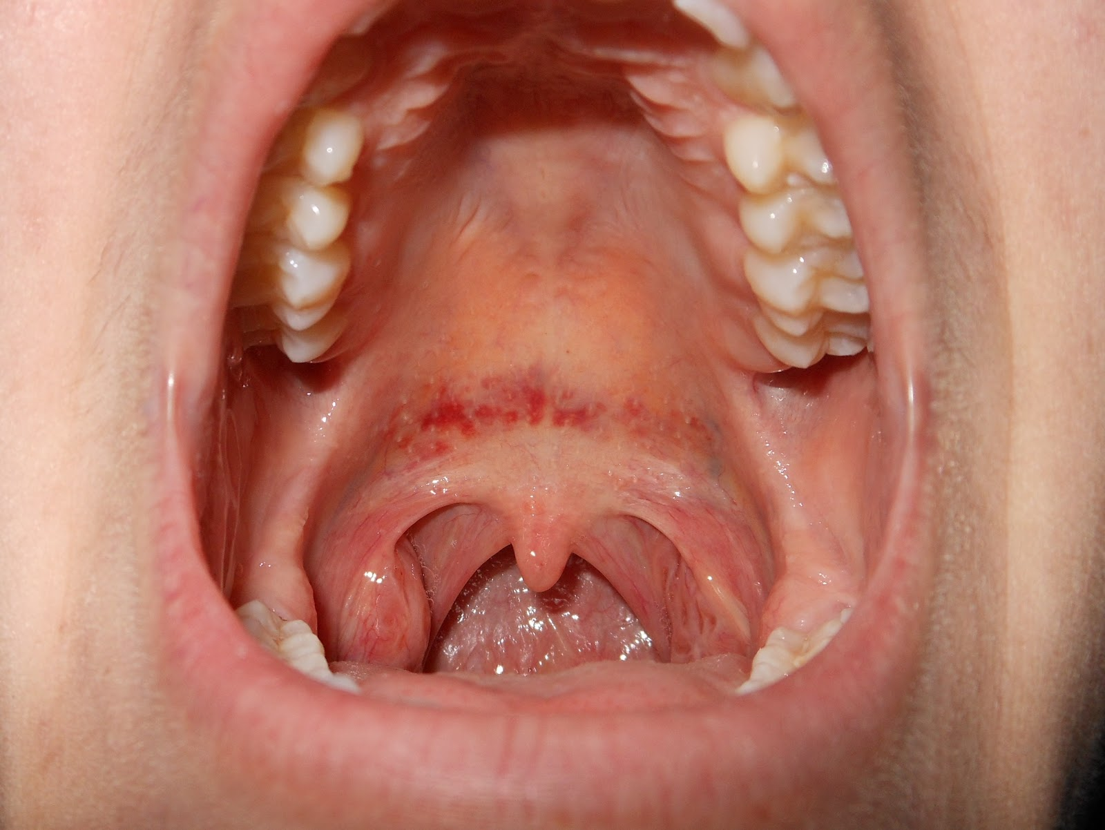 Rash Around Mouth (Lips) Causes, Pictures, Treatment ...