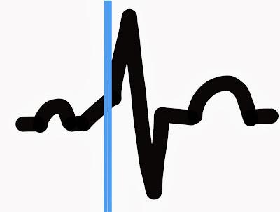 Wolff Parkinson White - Cardiac Arrhythmia
