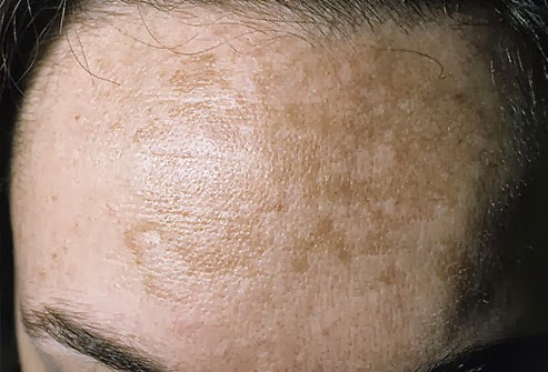 Cold Sores On Forehead SSL: October 20...