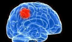 Obat Ampuh Penyakit Kanker Otak Dengan Bahan Alami