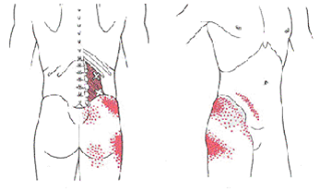 the trigger point manual by simons and travell