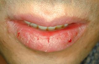 Inflamacion labio inferior