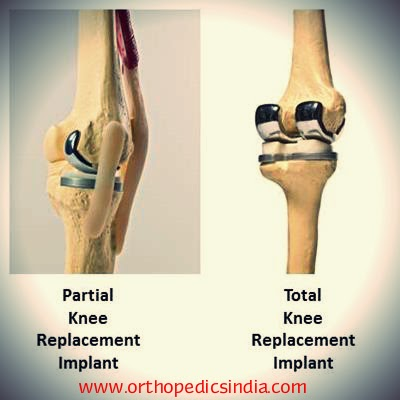 Advanced Orthopaedic Center India Knee Replacement