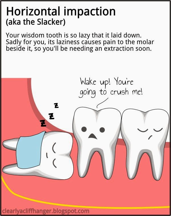The Dentist Confirmed My Guess And Told Me That Reason Why Gum Will Become Swollen Was Because Wisdom Tooth Grew Horizontally Ie Horizontal