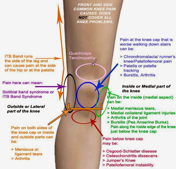 Inner Knee Pain Identification